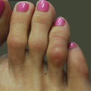 Image of hammertoes